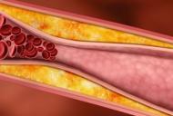 Ce complicații dau arterele înfundate