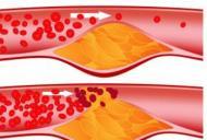 Efectele colesterolului mărit
