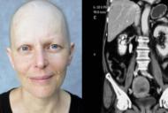 Cum se manifesta cel mai agresiv cancer al femeilor. I se spune 'ucigasul tacut'