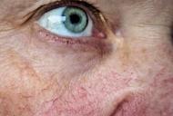 Face ravagii în corp, iar când apar simptomele, e deja târziu. Boala face mai multe victime decât cancerul