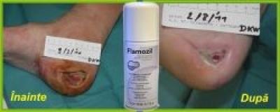 Tratarea ulcerului de decubit cu FLAMOZIL