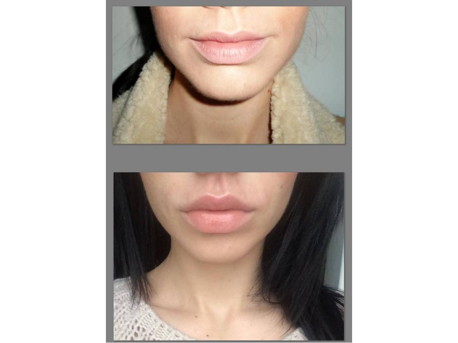 Grand Beauty Clinic - 11040730_10206245675640578_850458760_n.jpg