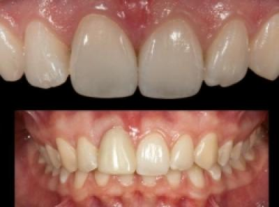 Reabilitare orala, Caz clinic