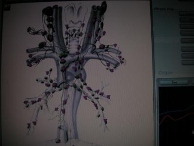 Limfa si bolile neurodegenerative