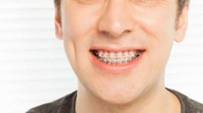 Aparatul dentar de safir – caracteristici și avantaje