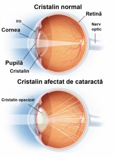 Cataracta și tratamentul corespunzător