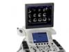 eco cardiografe 3D/4D GENERAL ELECTRIC VIVID E 9 demo