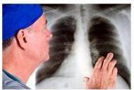 7 simptome ale bolilor pulmonare