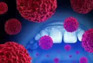 Tot ce trebuie sa stim despre cancerul cavitatii bucale