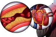 Exista vreo legatura intre masa musculara si riscul de boli cardiovasculare