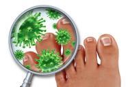 Ciuperca picior celulita