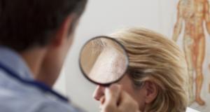 Petele de varsta sau lentigo solar: cauze, simptome si tratament
