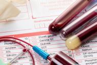 Ce poate indica nivelul crescut al enzimelor hepatice?