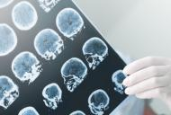 Epilepsia – simptome, cauze si tratament