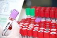 Analize de sange pentru depistarea cancerului