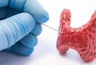 Glanda tiroida - simptome