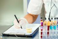 Hidronefroza - acumularea urinei in rinichi