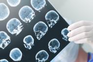 Hipoxia cerebrala sau privarea de oxigen a creierului