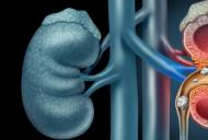 Ai pietre la rinichi? Afla cum pot fi eliminate