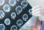 Lucruri pe care ar trebui sa le stii inainte de a face un RMN cerebral