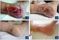 Ulcerul varicos se poate vindeca! Compresia si terapia locala hidroactiva