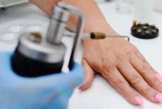 human papilloma virus penyebab penyakit